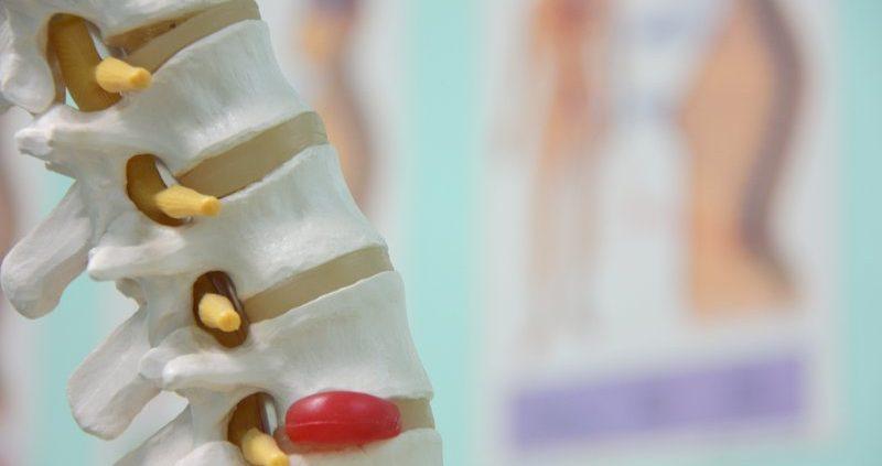 Chiropractie Deurne Vlierden Hernia